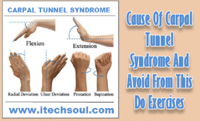 CARPAL-TUNNEL-SYNDROME-