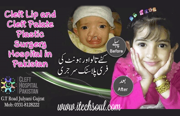 Cleft Lip and Cleft Palate Plastic Surgery Hospital