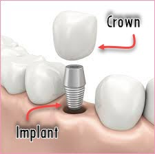 Modern Dental Treatment (2)