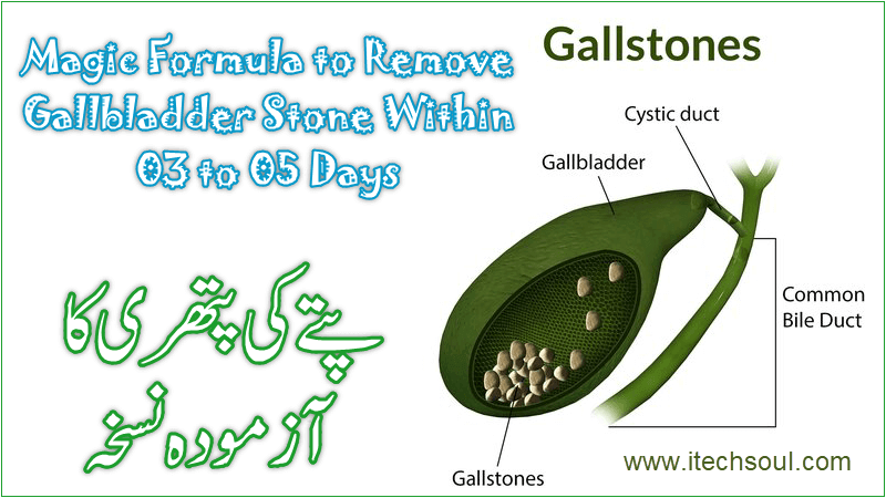 Magic Formula to Remove Gallbladder Stone