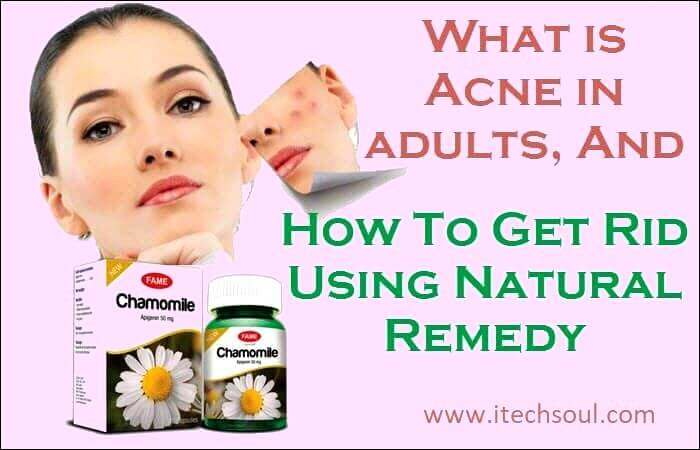 What is Acne in adults
