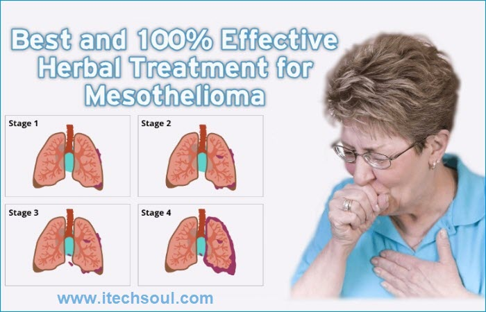 Herbal Treatment of Mesothelioma