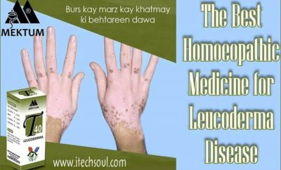 Leucoderma Disease